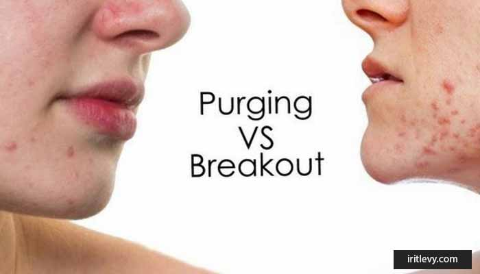 The difference between Purging and Breakout is that new skincare makes it spotty